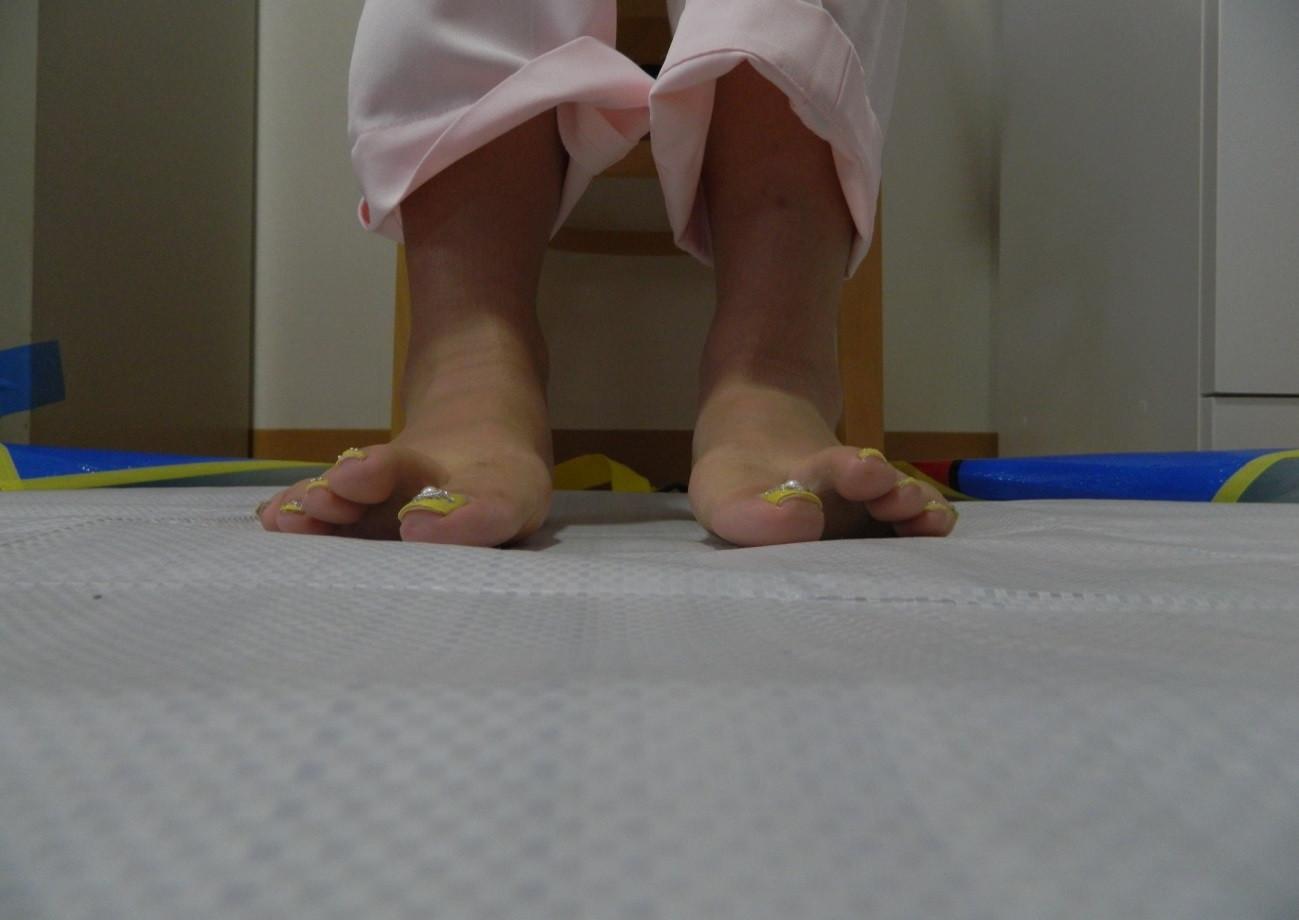 """足趾(ゆび)が着かない""""浮き趾""""は若年層や子供にも増えています"""