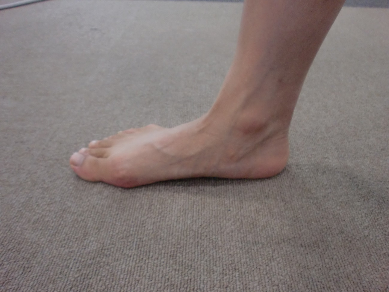 外反母趾にご用心!ピンヒールで足のアライメントが崩れ